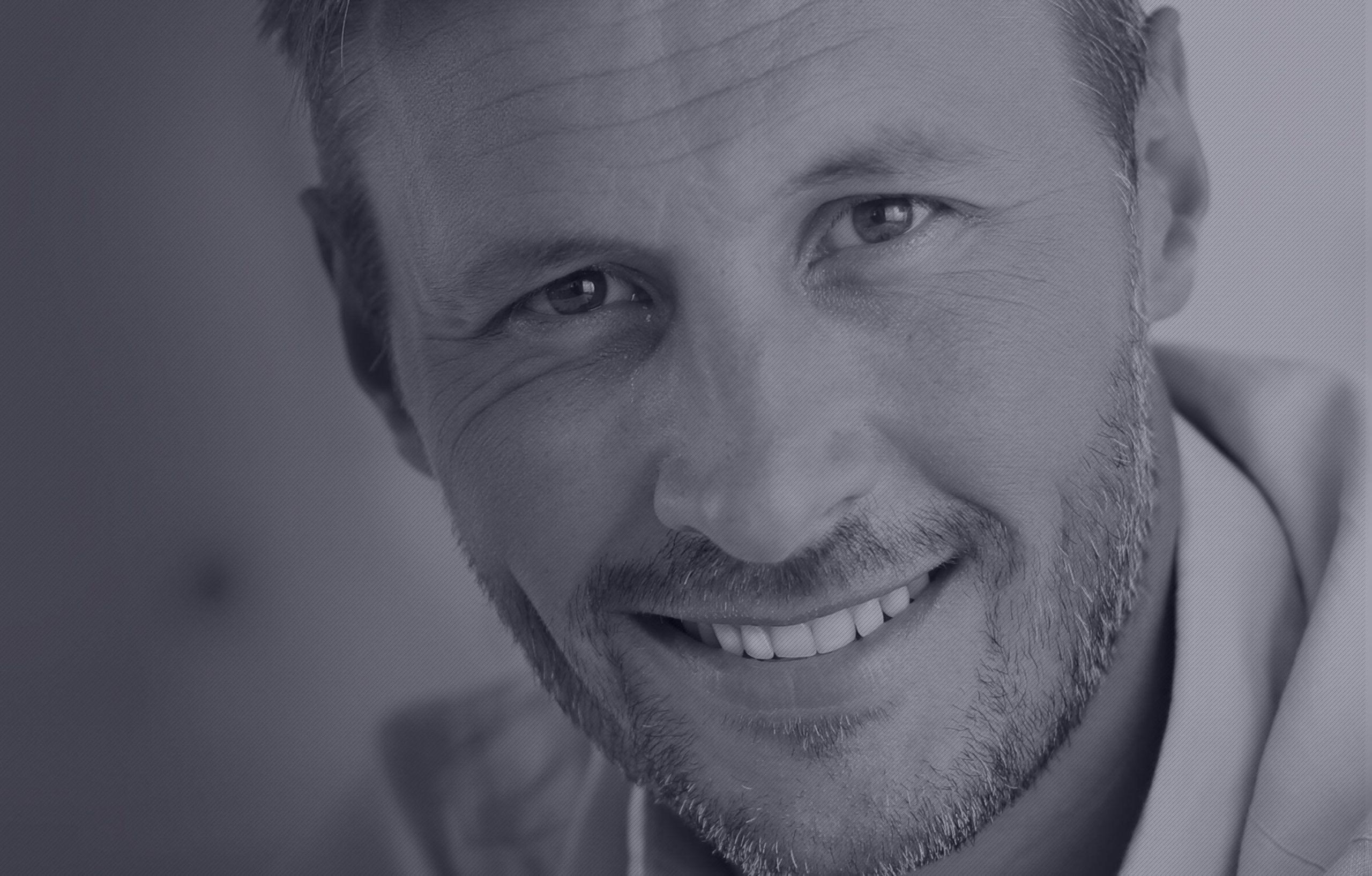 Facettes dentaires sublimant le sourire à Paris | Dr Cohen