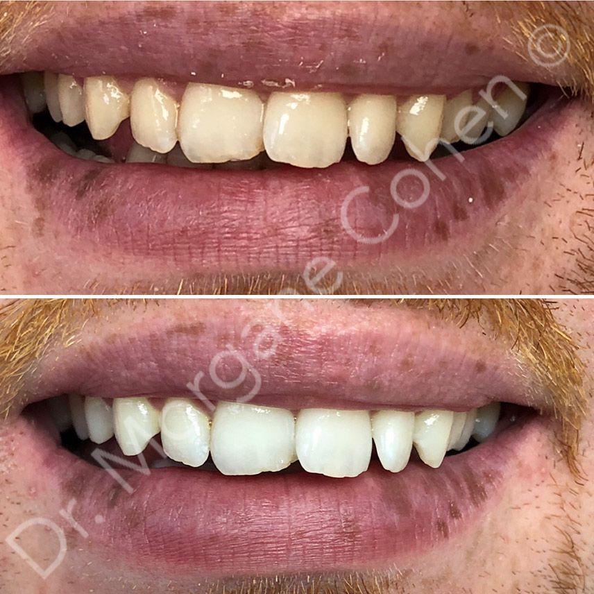 Avant-après blanchiment dentaire 30 à Paris | Dr Cohen