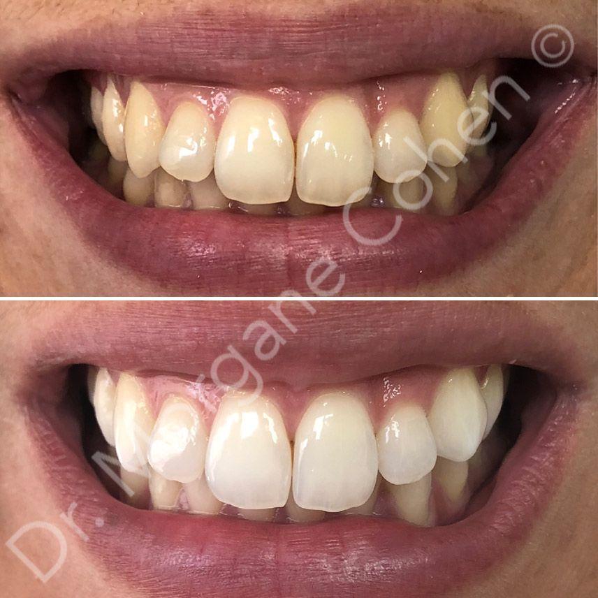Avant-après blanchiment dentaire 40 à Paris   Dr Cohen