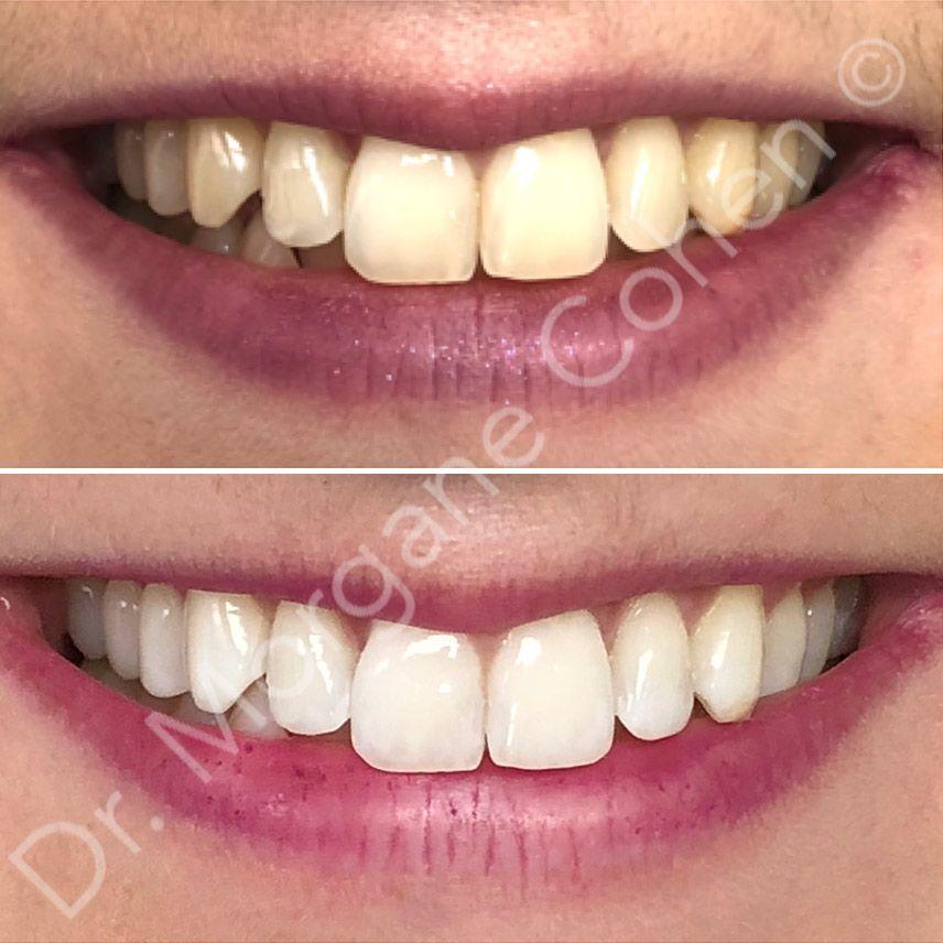Avant-après blanchiment dentaire 31 à Paris | Dr Cohen
