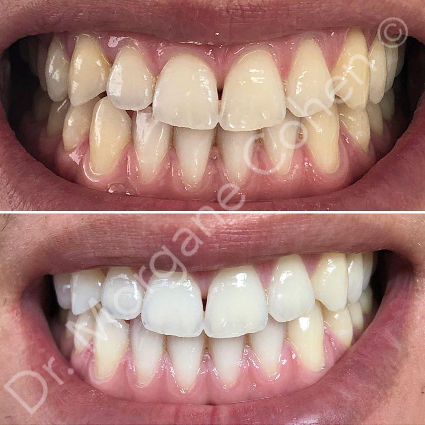 Avant-après blanchiment dentaire 33 à Paris | Dr Cohen