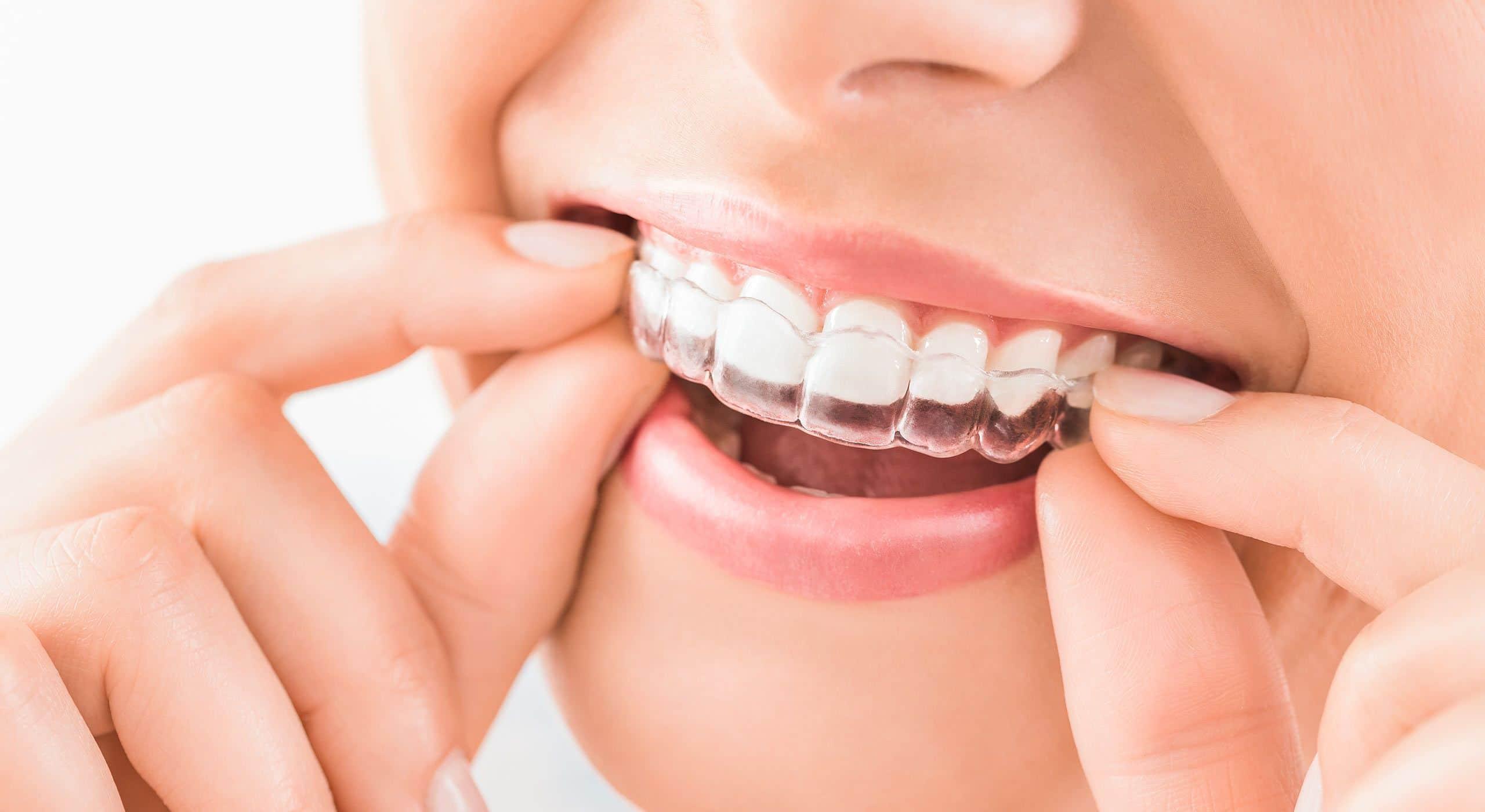 Alignement des dents à Paris   Dr Cohen