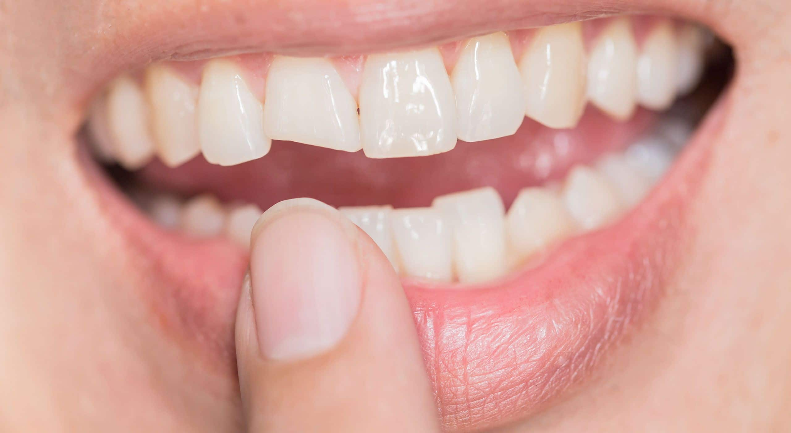 Amélioration de l'aspect des dents à Paris | Dr Cohen