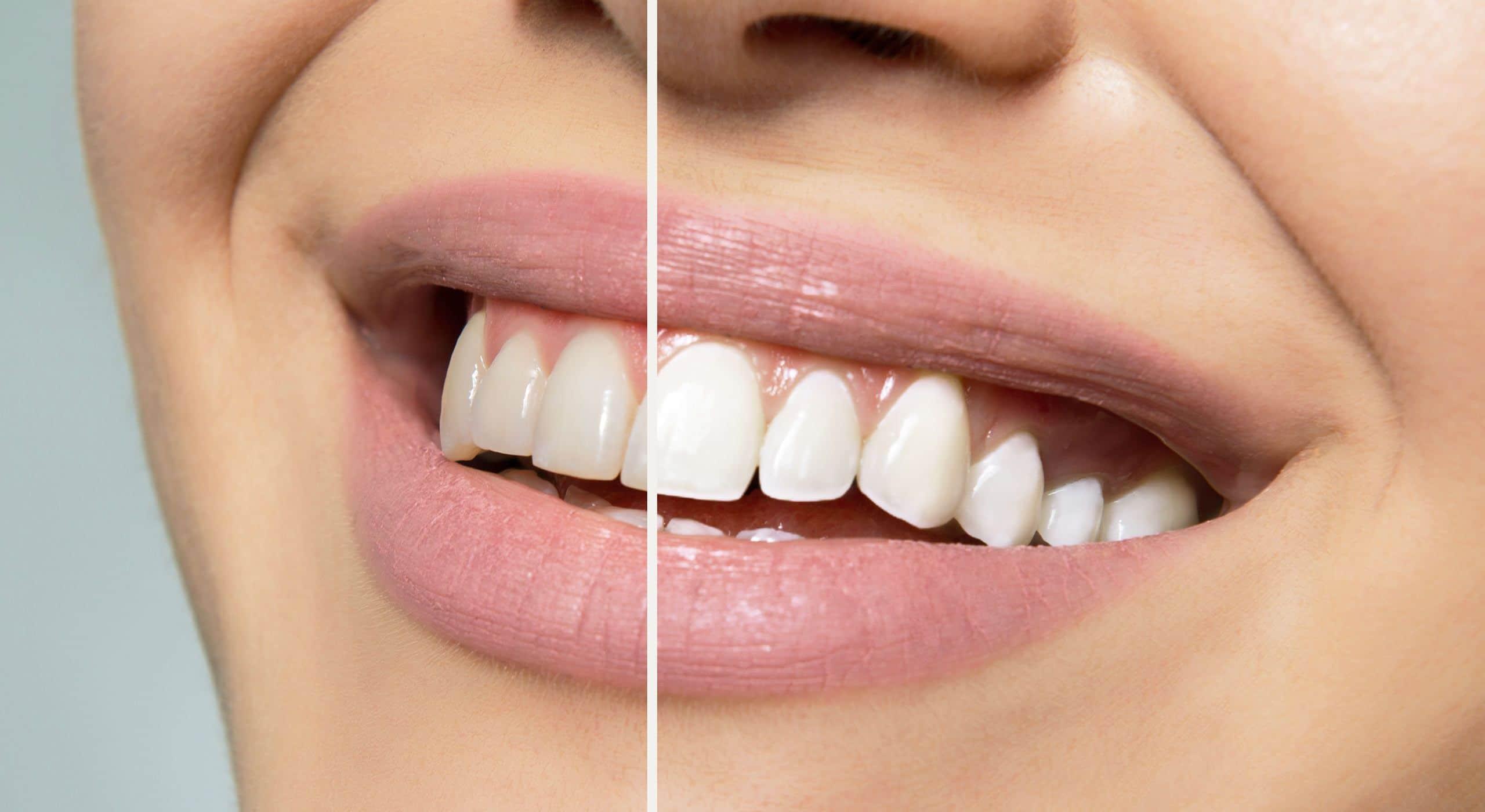 Le blanchiment des dentaire à Paris | Dr Cohen