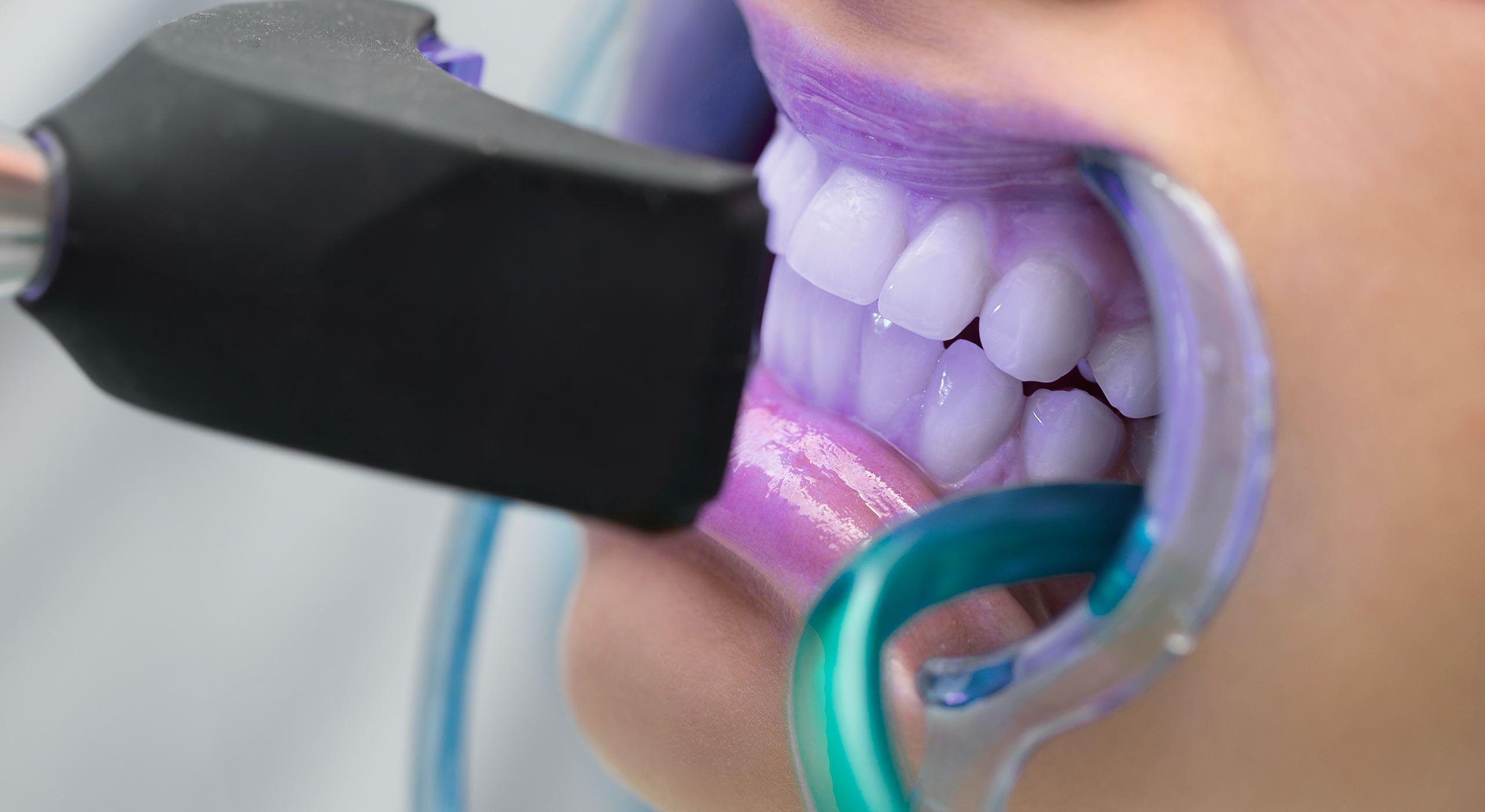 Blanchiment externe dentaire à Paris   Dr Cohen