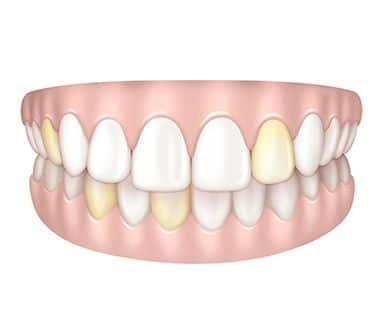 Dents jaunes à Paris | Dr Cohen