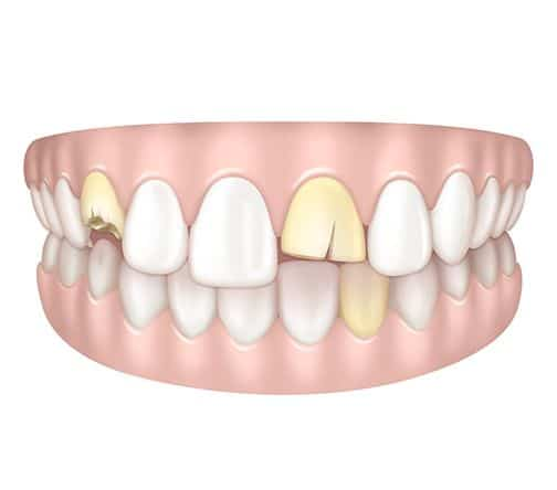 Dents jaunes et abimées à Paris | Dr Cohen
