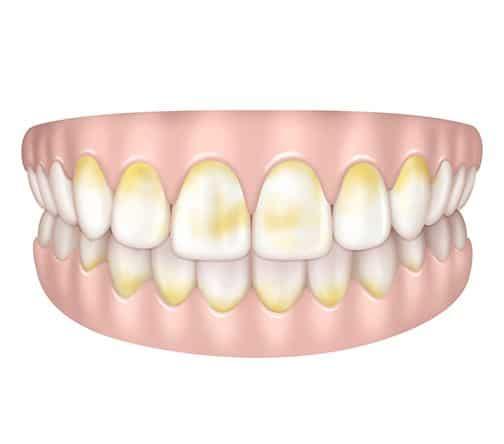 Dents tâchées de jaune à Paris | Dr Cohen