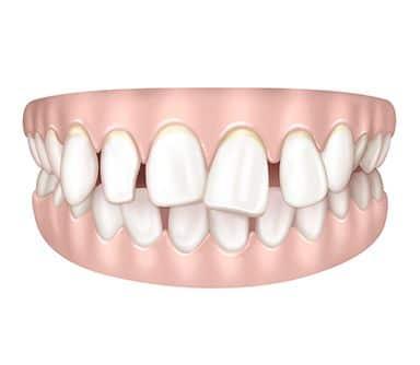 Dents mal positionnées à Paris | Dr Cohen