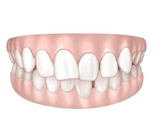 Chevauchement dentaire à Paris | Dr Cohen