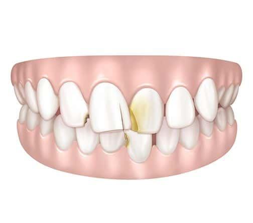 Dents abimées se chevauchant à Paris | Dr Cohen