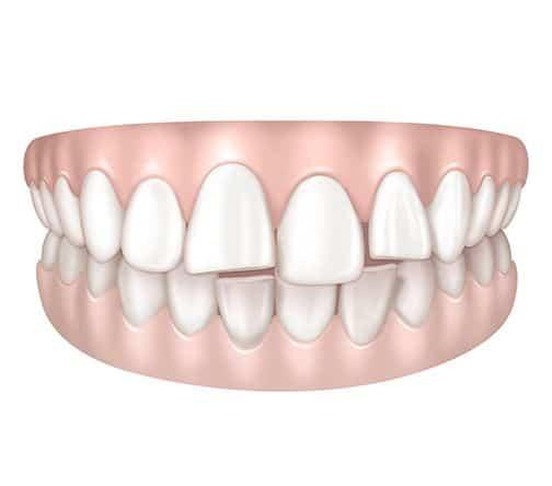 Dents avancées à Paris | Dr Cohen