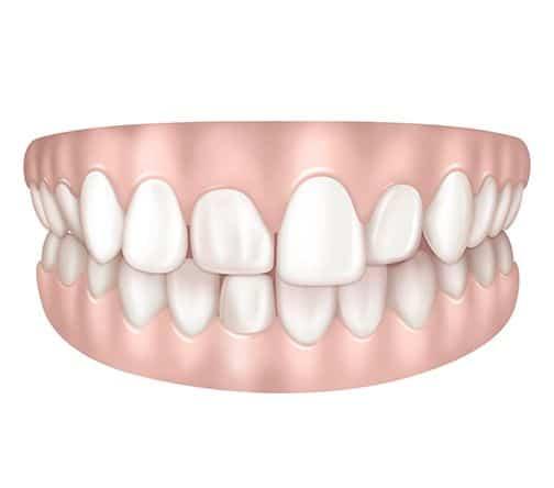 Dents reculées à Paris | Dr Cohen