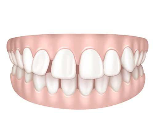 Dents espacées à Paris | Dr Cohen