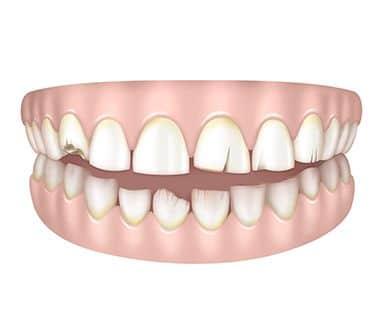 Dents courtes, abîmées ou cassées à Paris | Dr Cohen