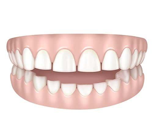 Dents trop courtes à Paris | Dr Cohen