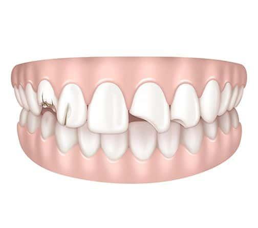 Dents cassées à Paris | Dr Cohen