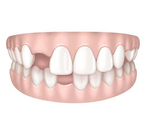 Dents absentes à Paris | Dr Cohen