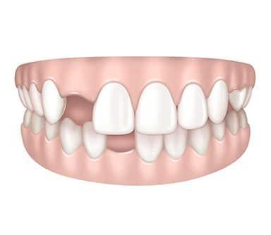 Dents manquantes à Paris | Dr Cohen