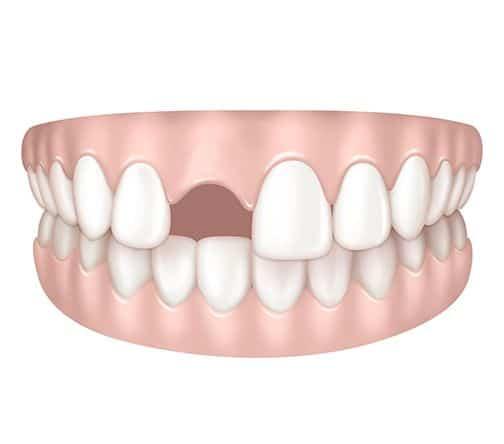 Absence de dents à Paris | Dr Cohen