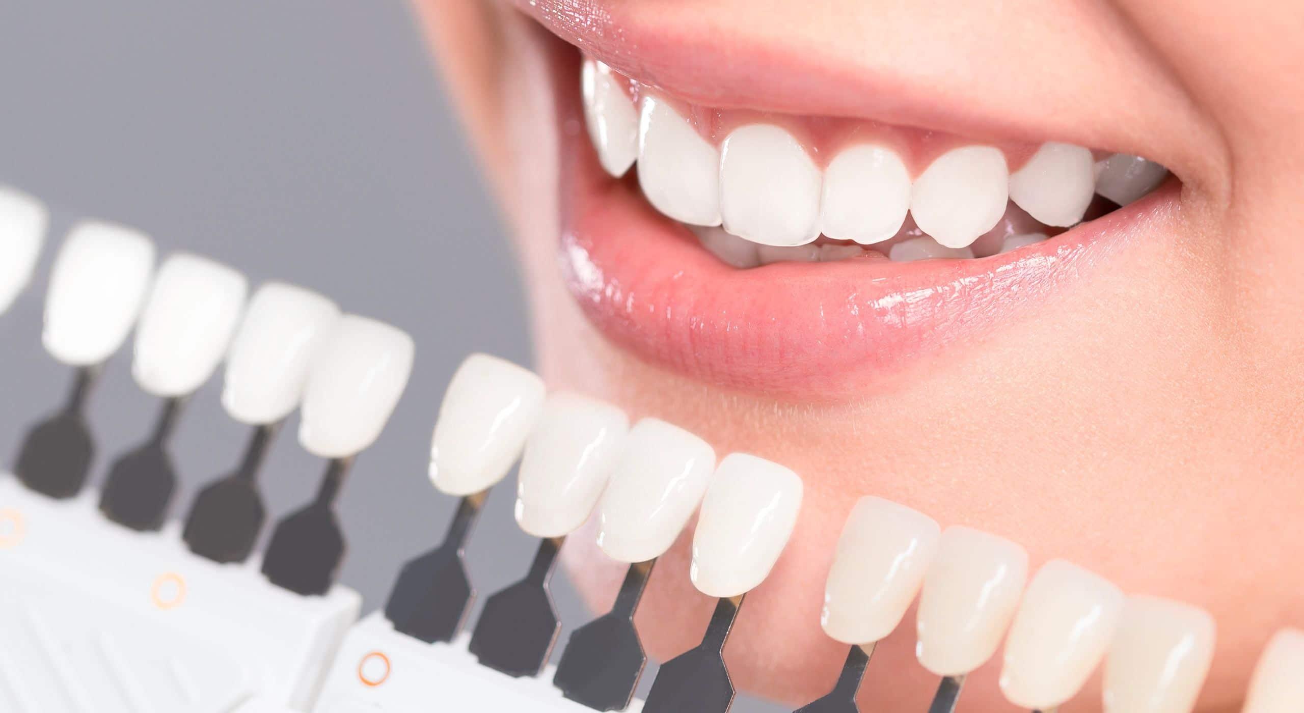 Pose de facettes dentaires à Paris | Dr Cohen