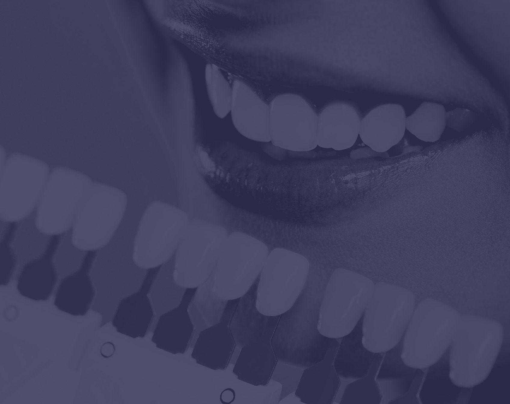 Facettes dentaires à placer sur les dents à Paris | Dr Cohen
