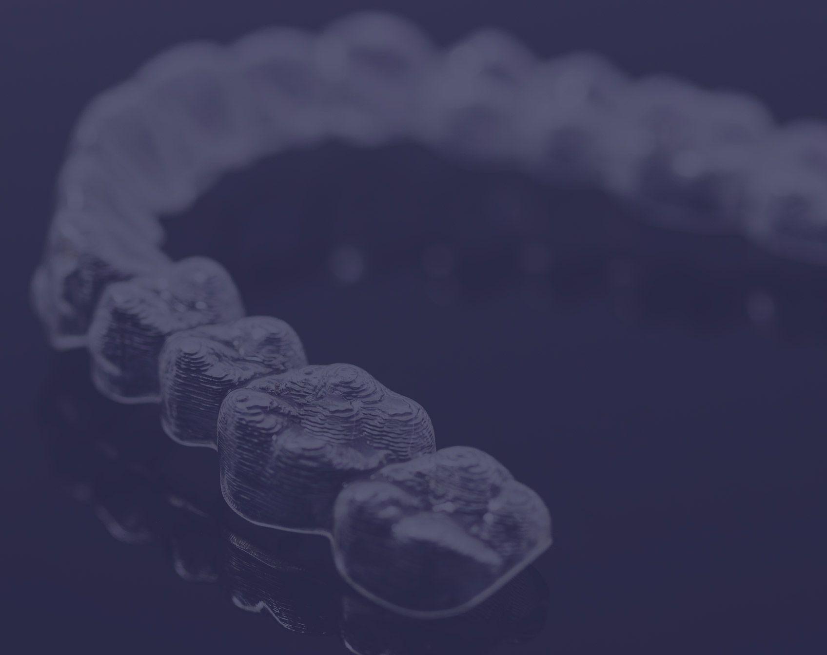 Invisalign pour l'alignement des dents à Paris | Dr Cohen