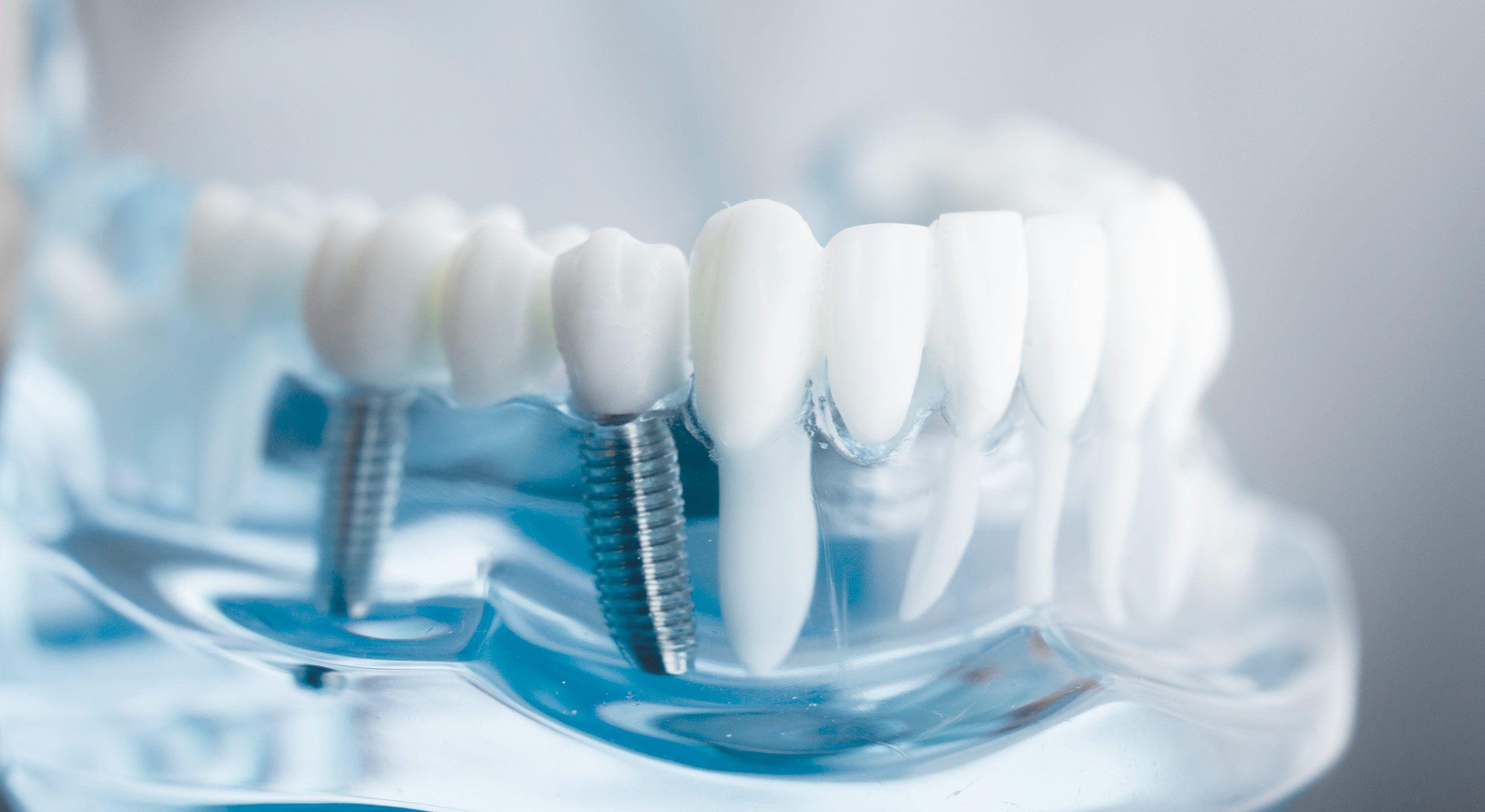 Rajouter des dents manquantes à Paris | Dr Cohen