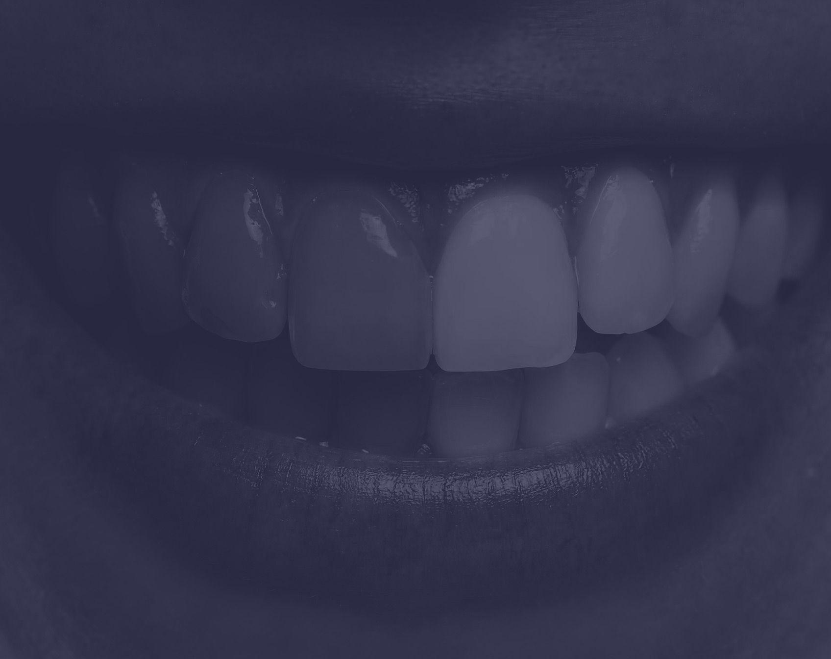 Blanchiment dentaire à Paris | Dr Cohen
