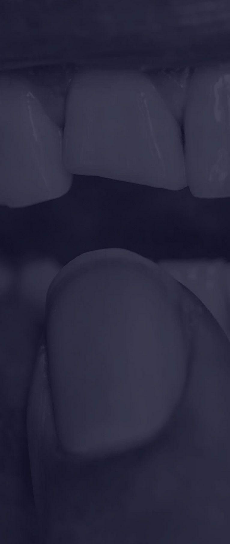 Embellir les dents abimées à Paris | Dr Cohen