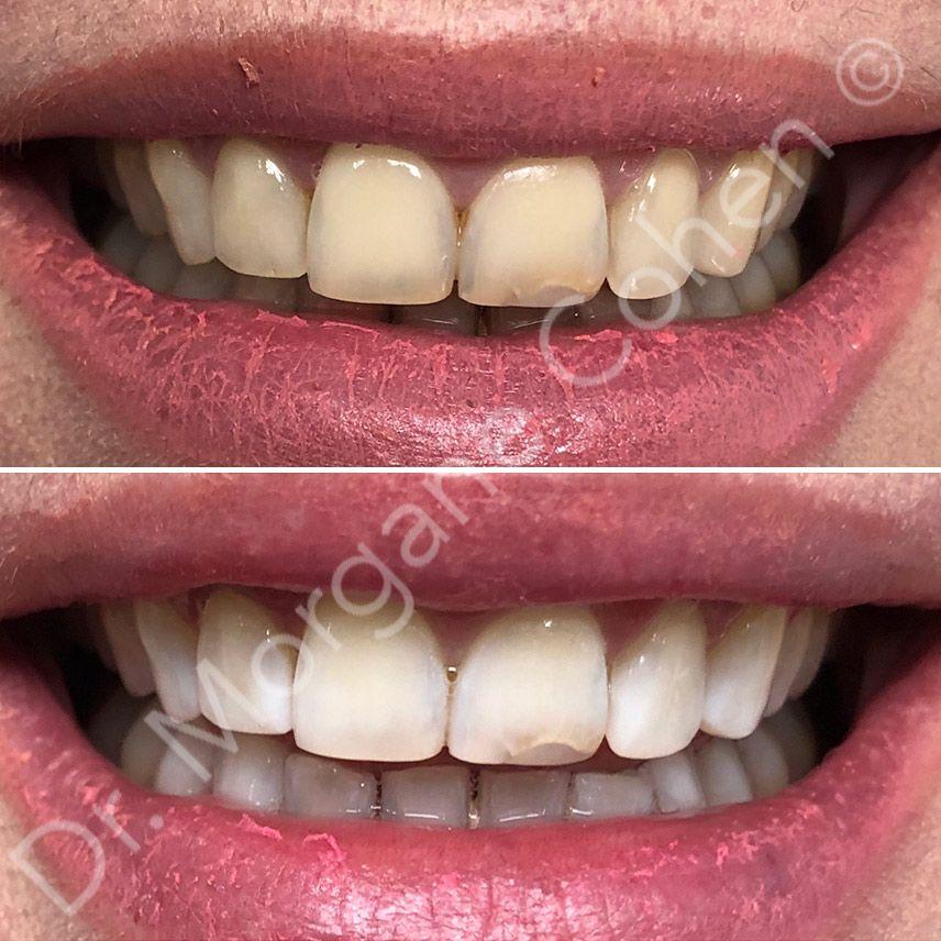 Avant-après blanchiment dentaire 26 à Paris   Dr Cohen