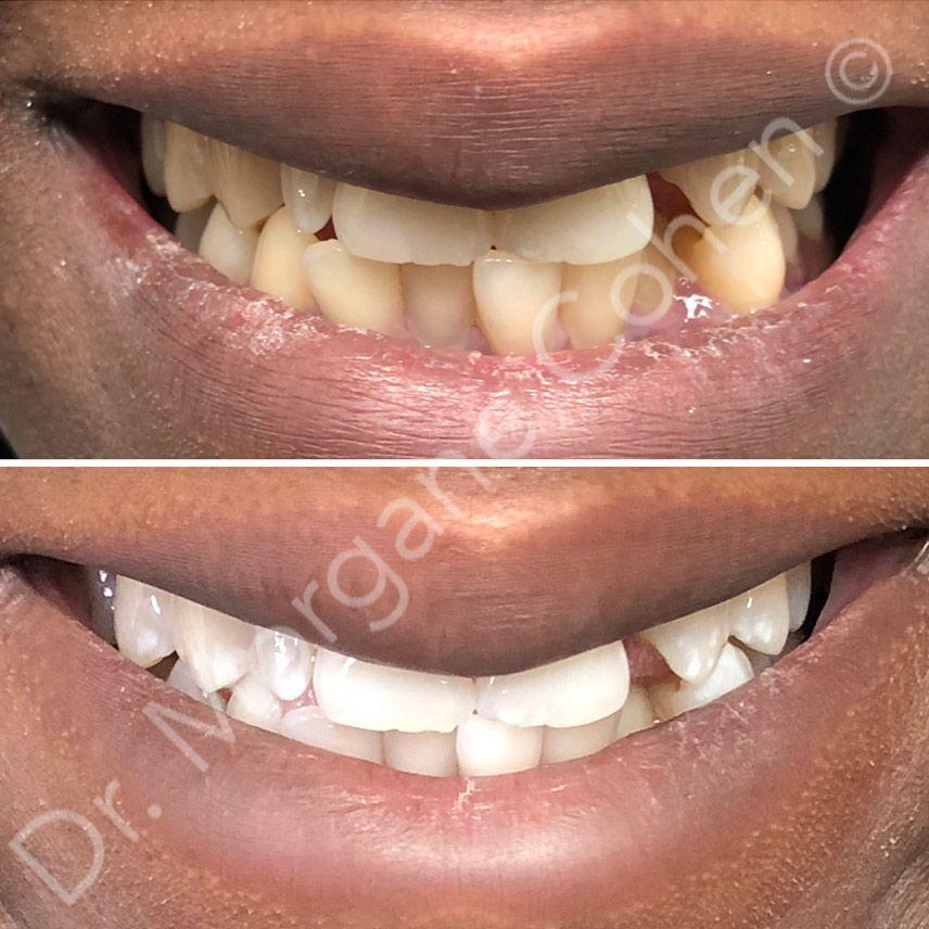 Avant-après blanchiment dentaire 43 à Paris | Dr Cohen