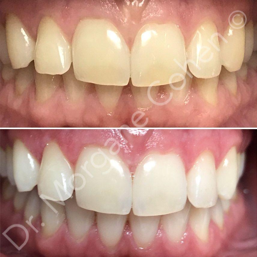 Expertise de l'esthétique dentaire à Paris | Dr Cohen