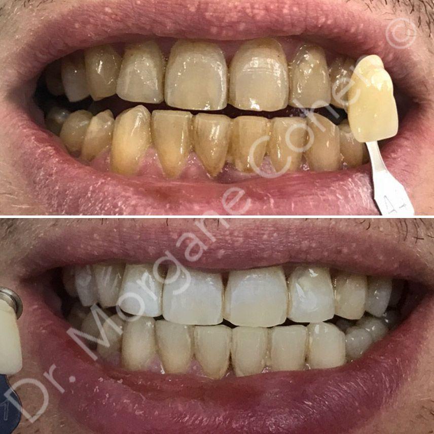 Avant-après blanchiment dentaire 24 à Paris | Dr Cohen