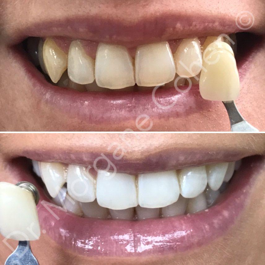 Efficacité du blanchiment dentaire à Paris | Dr Cohen