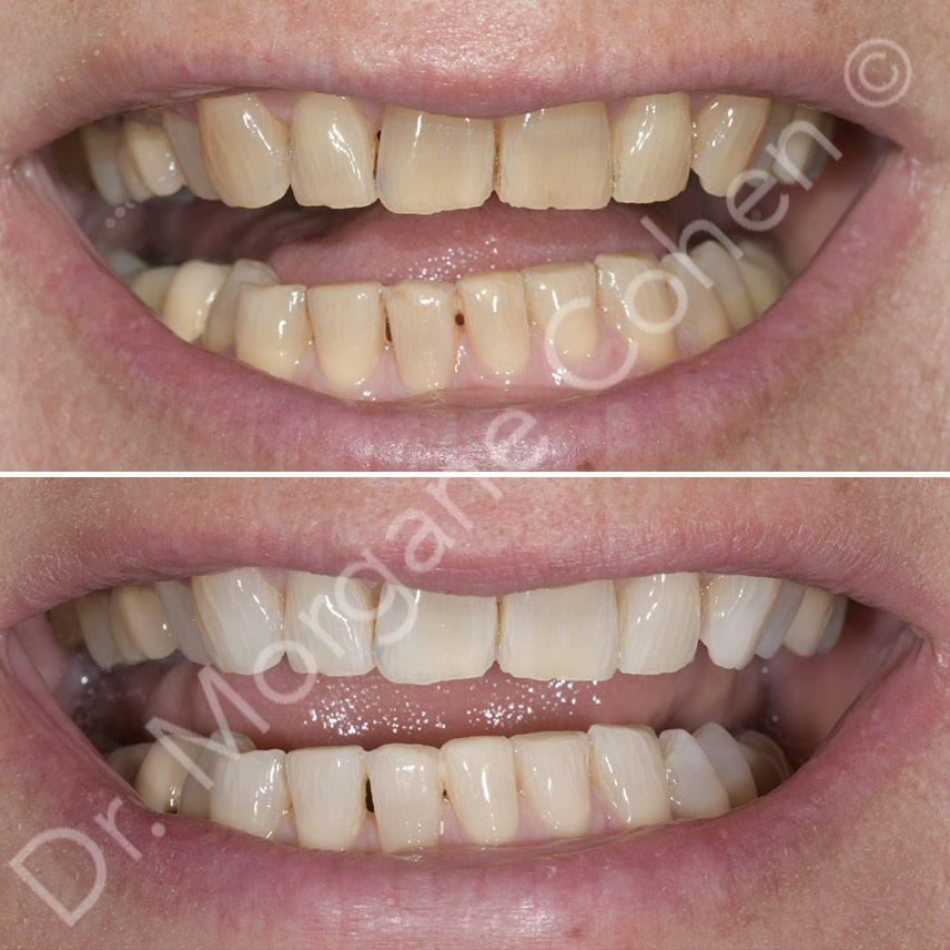 Avant-après blanchiment dentaire 16 à Paris | Dr Cohen