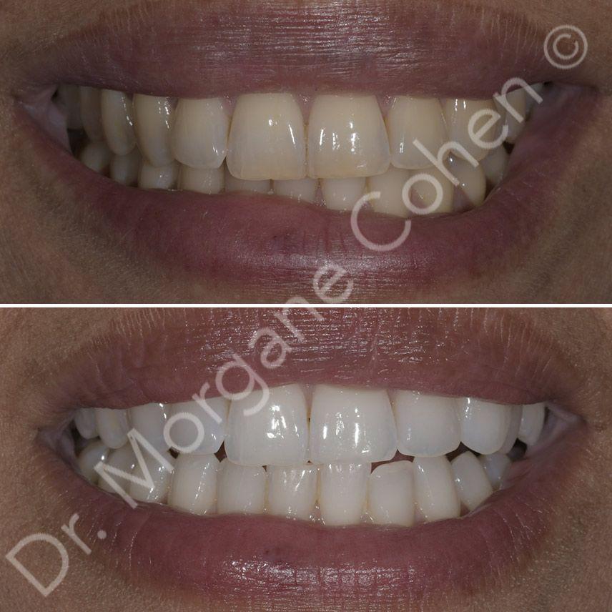 Avant-après blanchiment dentaire 45 à Paris | Dr Cohen