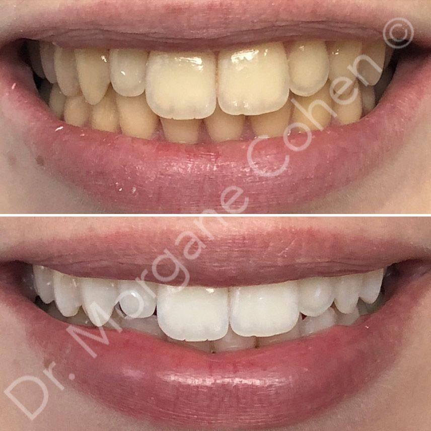 Avant-après blanchiment dentaire 19 à Paris | Dr Cohen