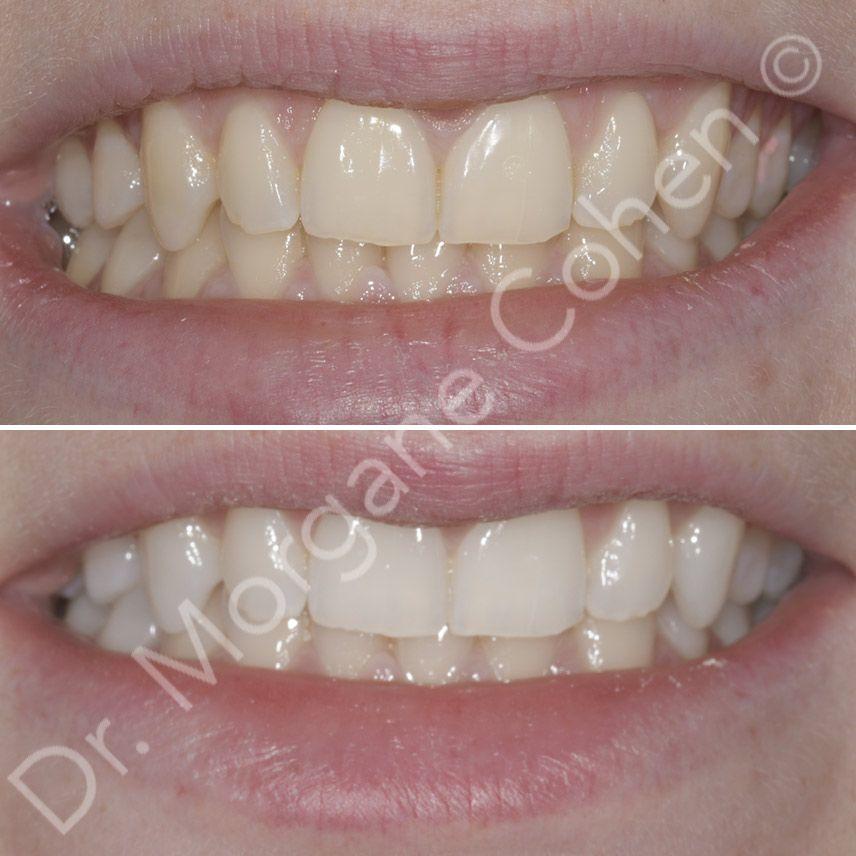 Avant-après blanchiment dentaire 15 à Paris   Dr Cohen