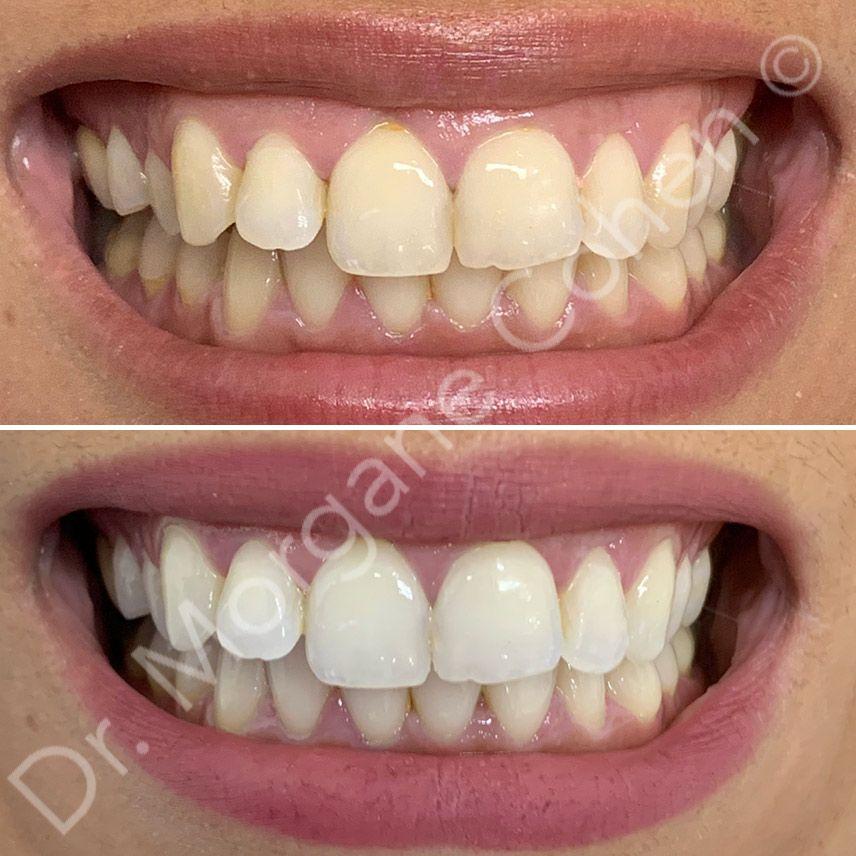 Avant-après blanchiment dentaire 7 à Paris   Dr Cohen