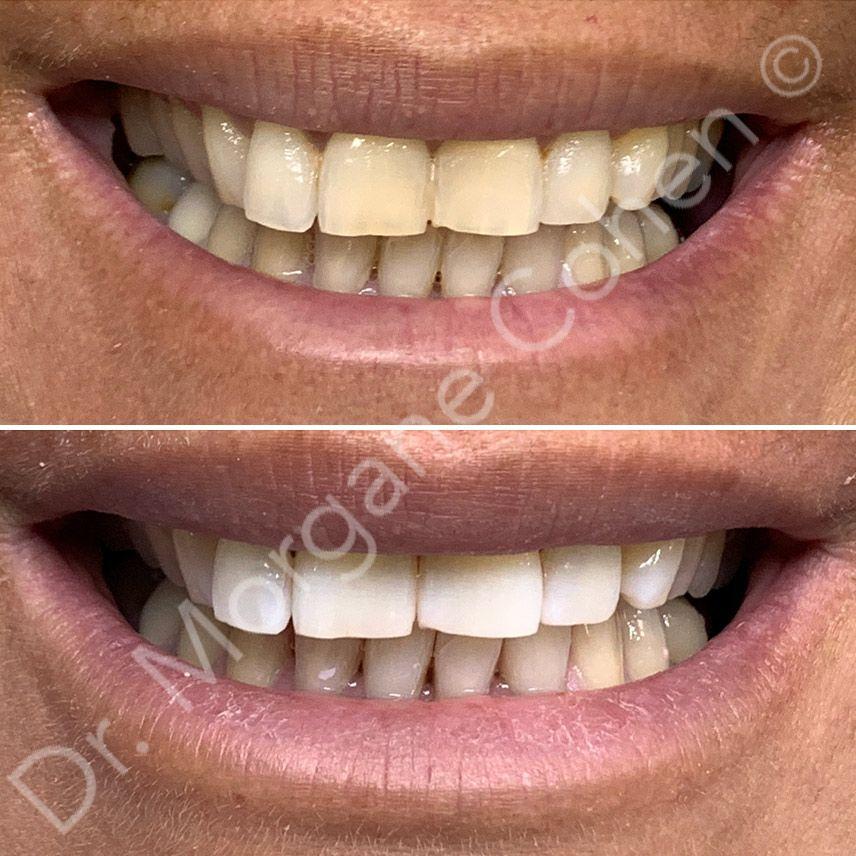 Avant-après blanchiment dentaire 6 à Paris   Dr Cohen