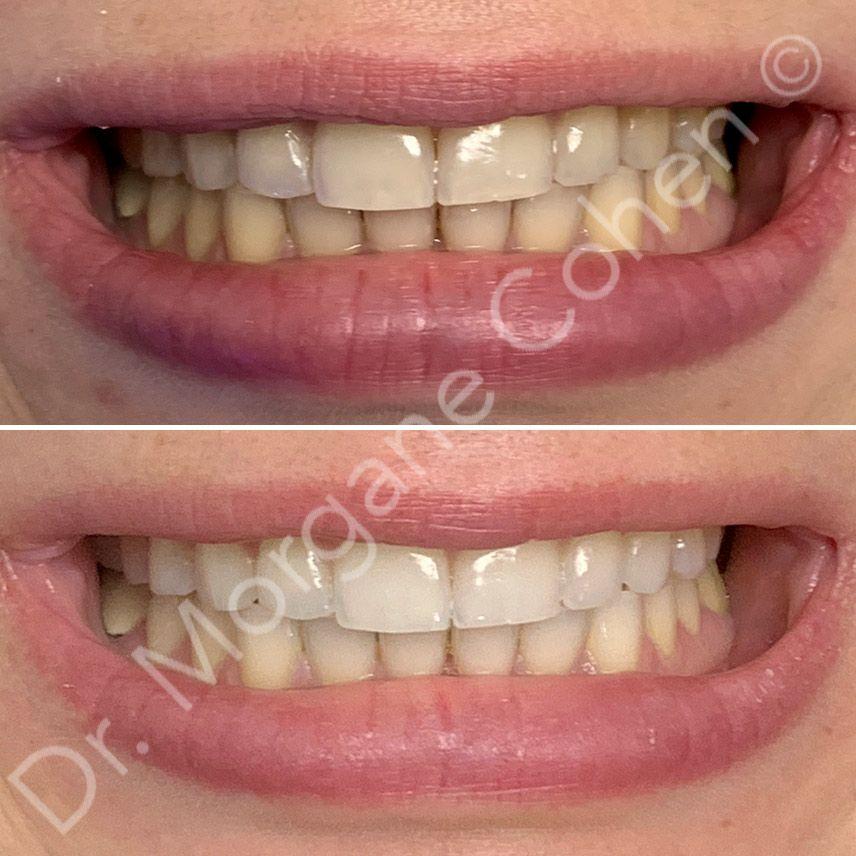 Avant-après blanchiment dentaire 8 à Paris | Dr Cohen