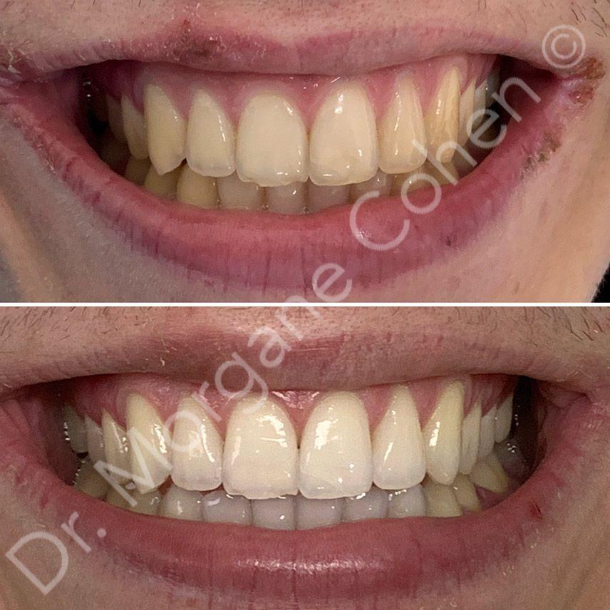 Avant-après blanchiment dentaire 5 à Paris   Dr Cohen