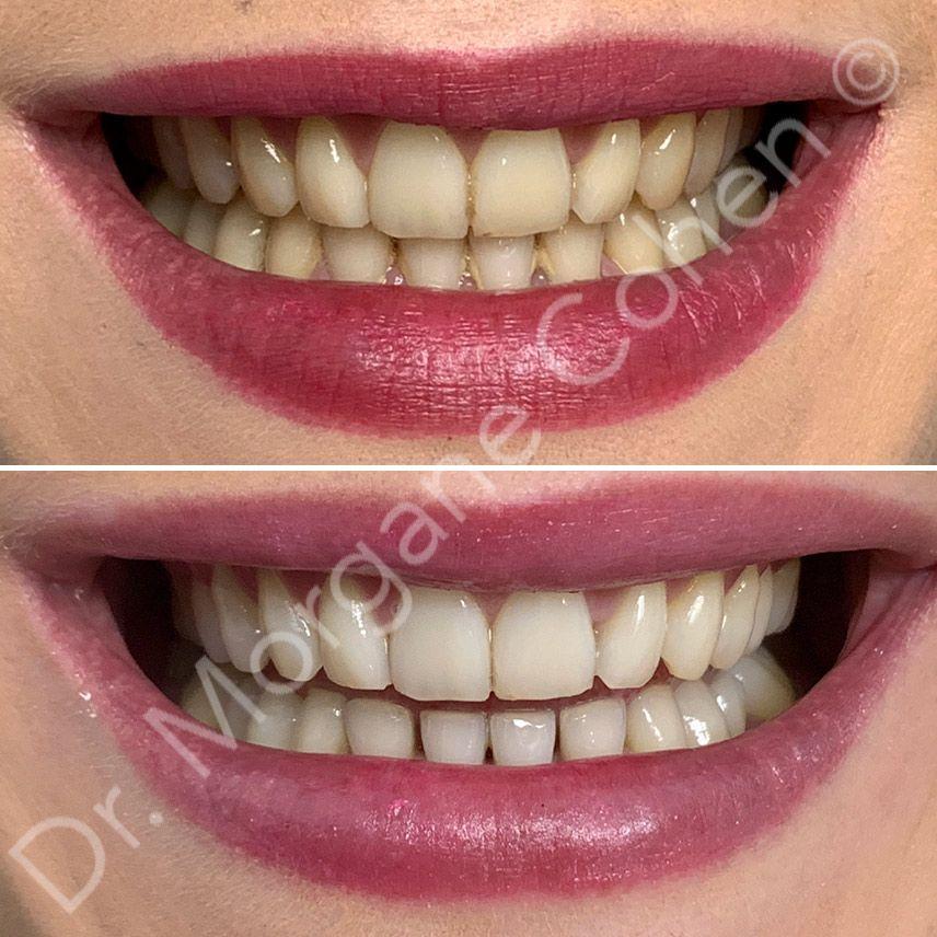Avant-après blanchiment dentaire 4 à Paris | Dr Cohen