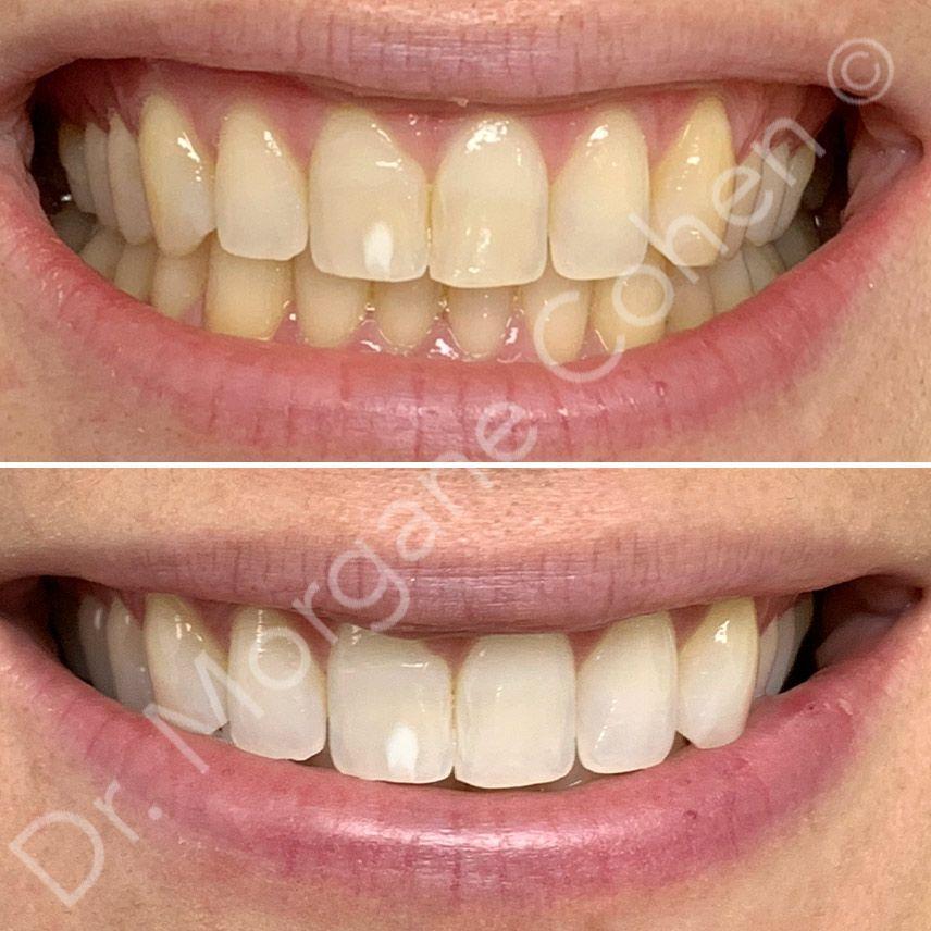 Avant-après blanchiment dentaire 10 à Paris   Dr Cohen
