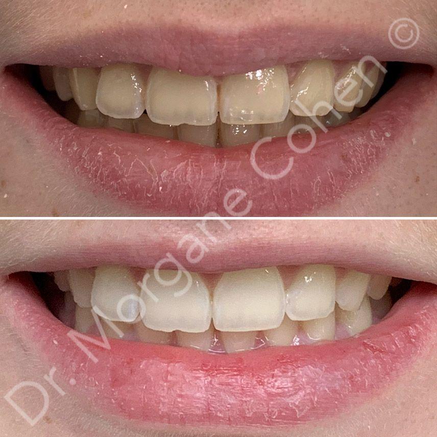 Avant-après blanchiment dentaire 13 à Paris   Dr Cohen