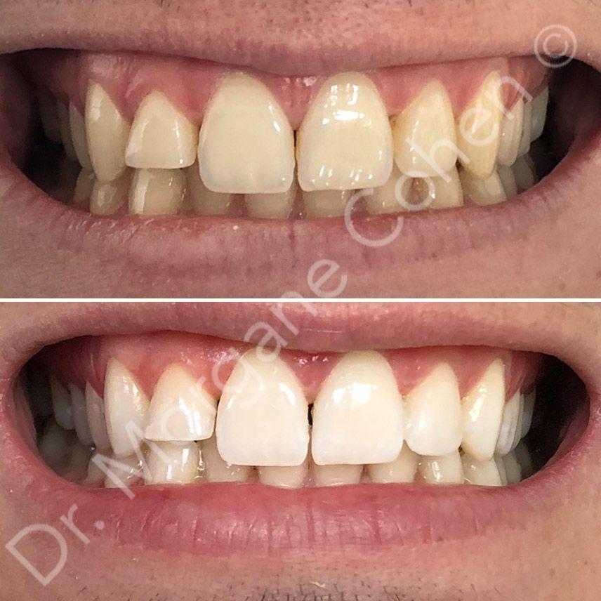 Avant-après blanchiment dentaire 14 à Paris   Dr Cohen