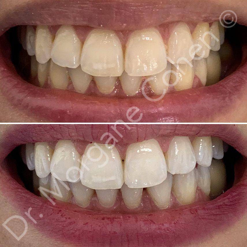 Avant-après blanchiment dentaire 12 à Paris | Dr Cohen
