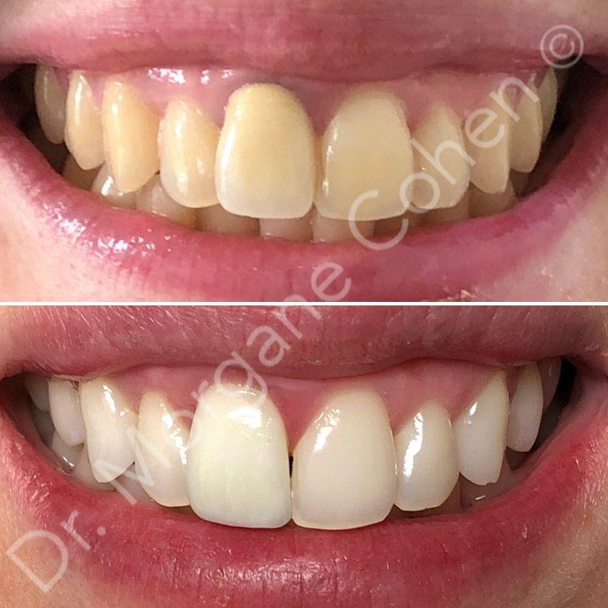Avant-après un blanchiment dentaire 1 à Paris | Dr Cohen