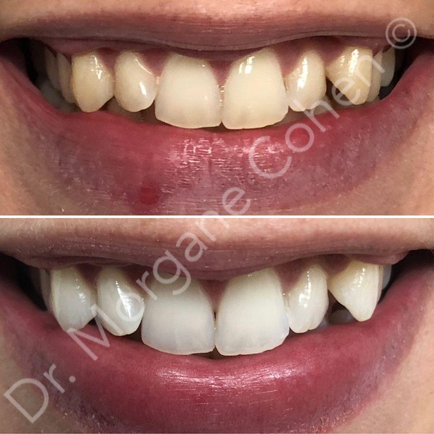 Avant-après blanchiment dentaire 11 à Paris   Dr Cohen